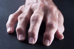 Rheumatoid Arthritis pain cure