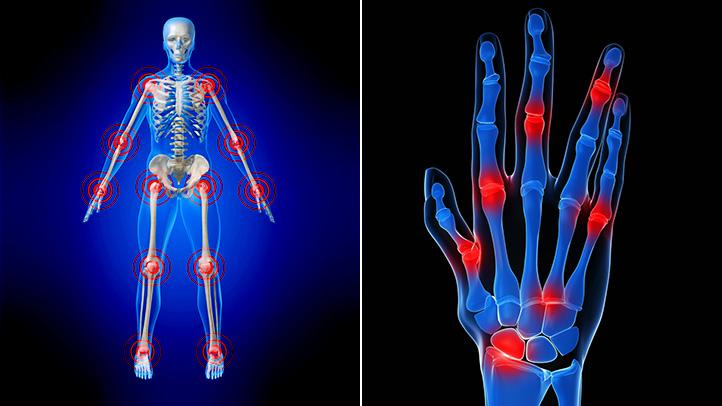 how pemf heals Rheumatoid arthritis pain